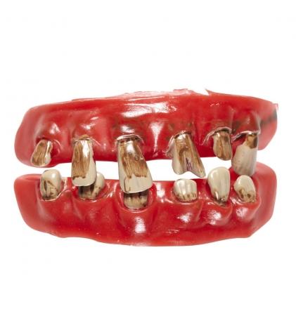 Schiefe Zähne Schlechte Zähne faule Zähne Asi dreckige Zähne
